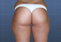 Ambulantná liposukcia